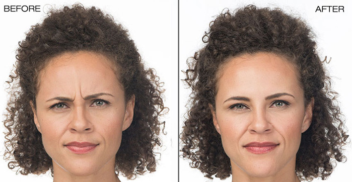 BEFORE & AFTER BOTOX® TREATMENT