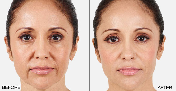 BEFORE & AFTER JUVÉDERM® TREATMENT