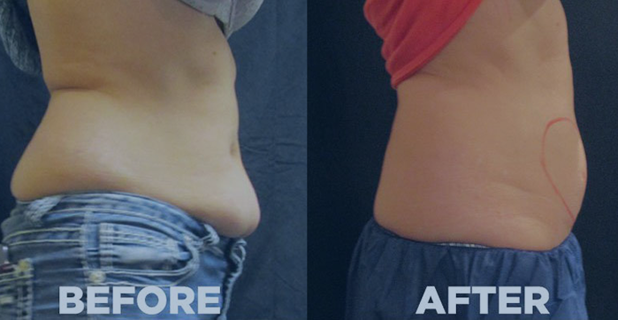 Coolsculpting Before After 1